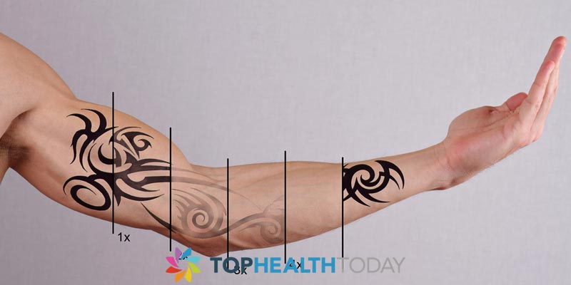 How long does tattoo removal take tattoo removal for How long does it take to get a tattoo removed