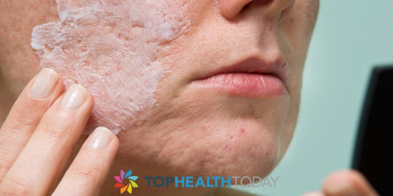 Are acne scars different than other scars?