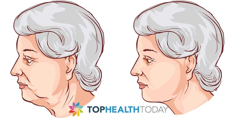 Advantages and Disadvantages of Neck Lifts
