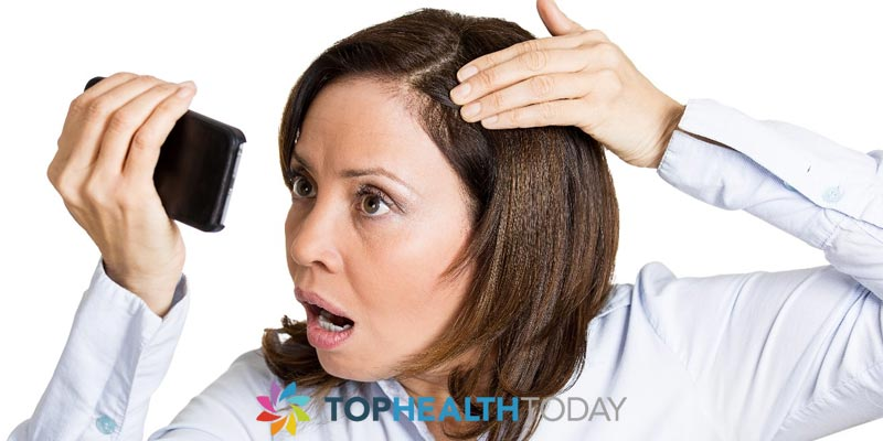What is female pattern hair loss?