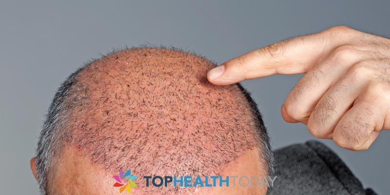 Are Hair Transplants Safe?