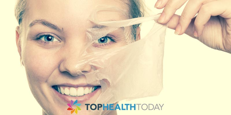 How Facial Peels Work