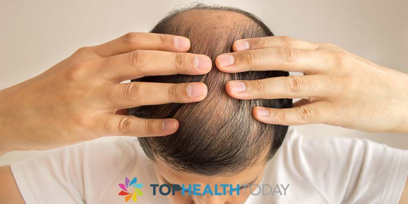 Top Causes of Early Balding