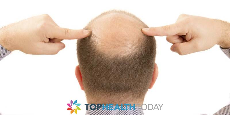 Top causes of balding in men