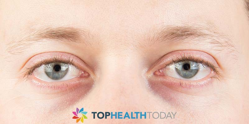 What Causes Dark Under Eye Circles?