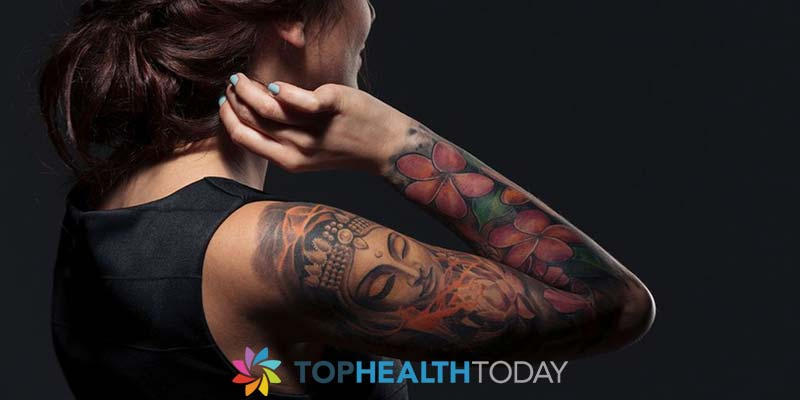 What Tattoo removal options are available?
