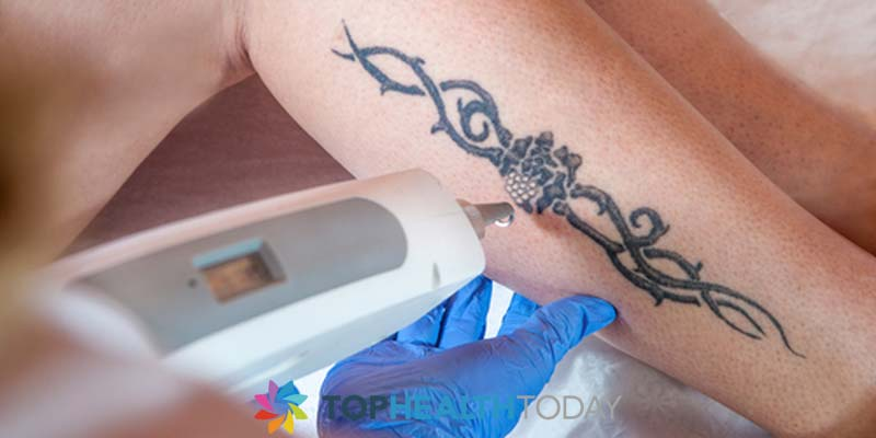What is Laser Tattoo Removal