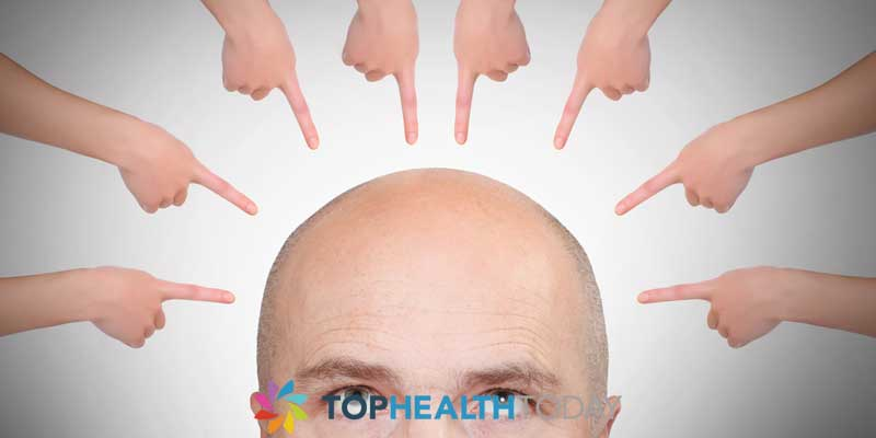 Male pattern Baldness 101